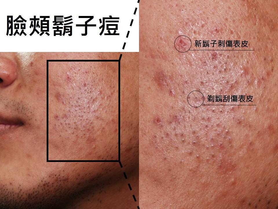 臺中皮膚科推薦   蔡逸群醫師: 鬍子痘:手動刮鬍子的雷區   蔡逸群醫師