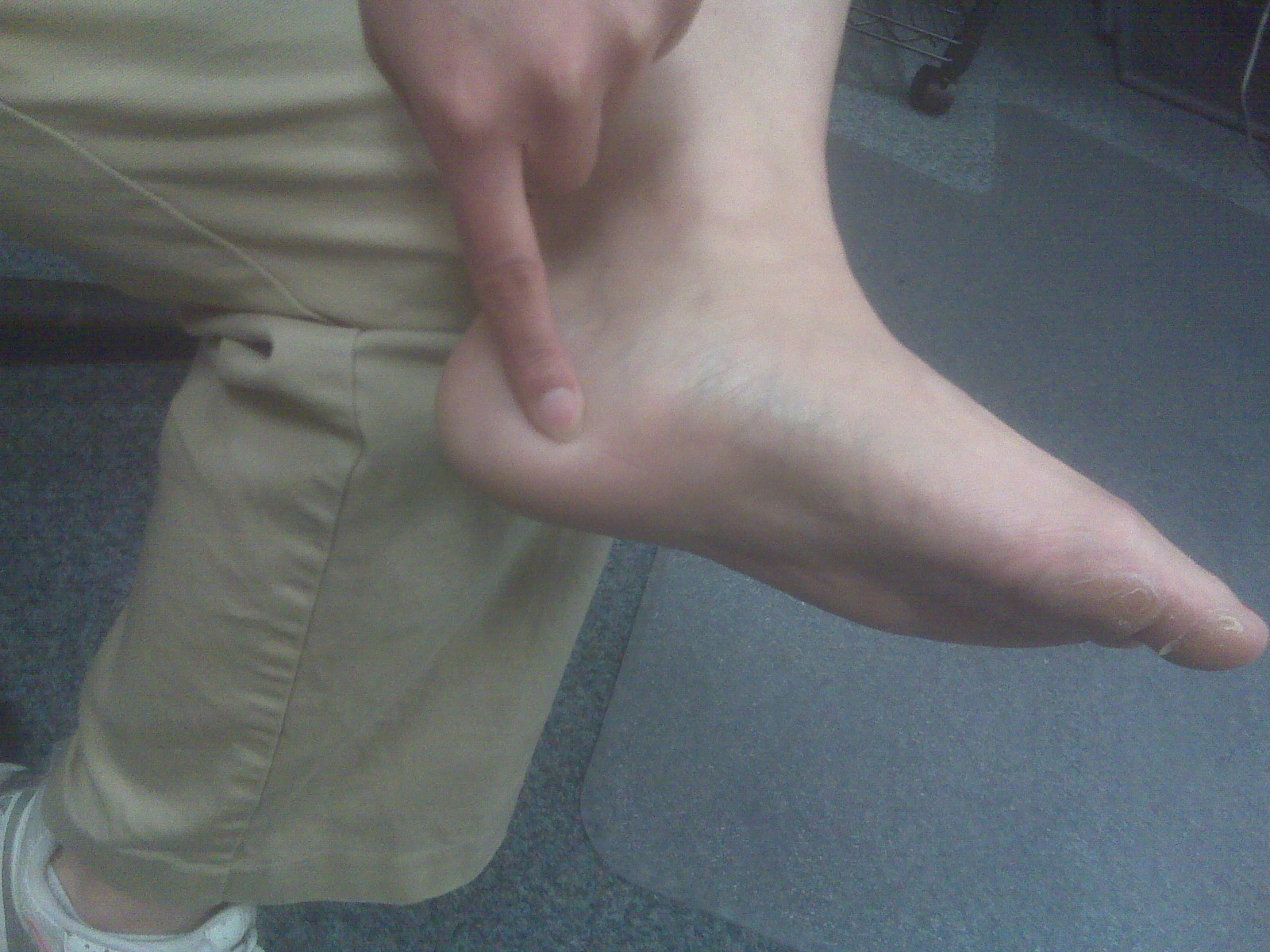Foot And Ankle Problems By Dr Richard Blake Plantar