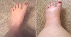 Les remèdes maison qui fonctionnent le mieux pour soulager l'enflure des pieds