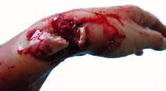 كسور, إصابات العظام
