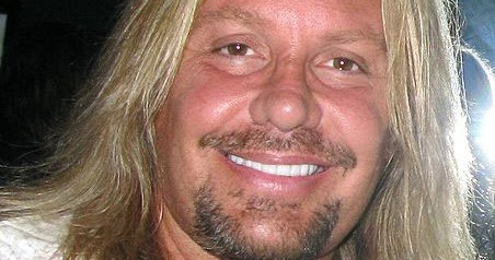 Vince Neil Plastic Surgery Before And After Brow Lift