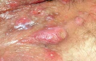 DI APOTEK Obat Gatal Alergi Bentol Kulit Di Selangkangan