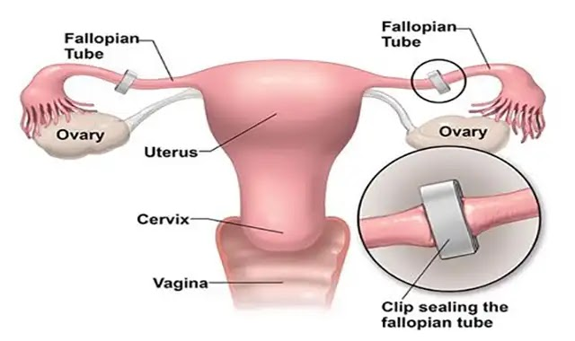 How female sterilisation is carried out and facts about it
