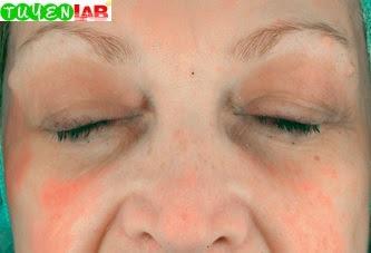 Fig. 5.28 Eyelid eczema