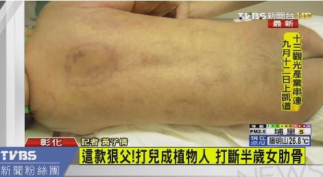 Ayah Biadab! Memukuli anak sendiri hingga koma, anak 2 bulan dipukul hingga 3 tulang rusuk retak