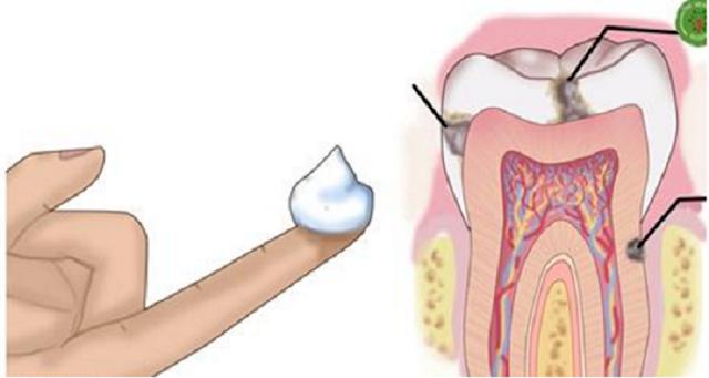 ¿Por qué los dentistas no quiero decirle esto? Una manera fácil de combatir las caries con aceite de coco en casa!