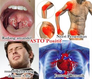 Obat Herbal ASTO Positif