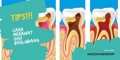 Menjaga Kesehatan Gigi Agar Tidak Berlubang