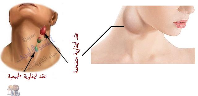 الجهاز المناعى - تركيب - الأعضاء الليمفاوية المحيطية -العقد الليمفاوية - تضخم
