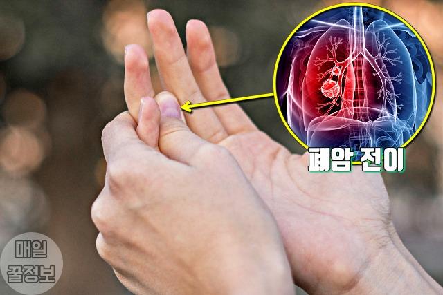 손가락 통증, 폐암 뼈전이 증상, 건강, 팁줌마 매일꿀정보
