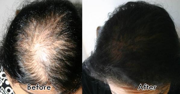 Before After Perawatan Rambut Botak Wanita