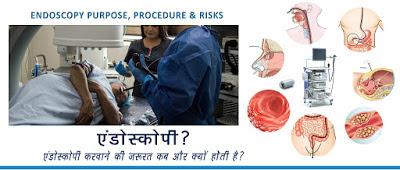 Know-About-Endoscopy-Test-Hindi, Endoscopy-Meaning-in-Hindi, Endoscopy-Test-in-Hindi, Hindi-Tips-for-Endoscopy, Endoscopy-kya-hai, Endoscopy-kaise-hoti-hai,  endoscopy-kya-hai