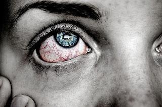eye strain,red eyes,dry eyes,strain
