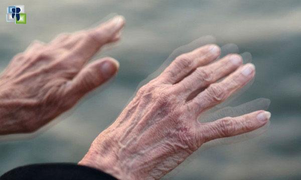 مرض باركنسون: تكنولوجيا الموجات فوق الصوتية قد تخفف الأعراض