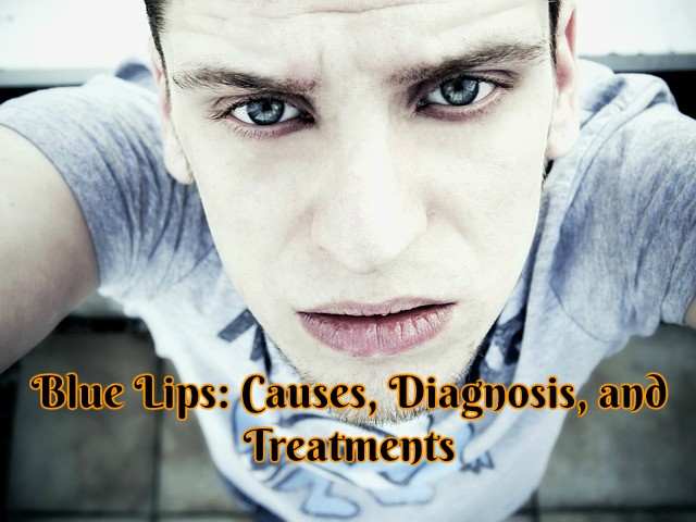Blue Lips: Causes, Diagnosis, and Treatment