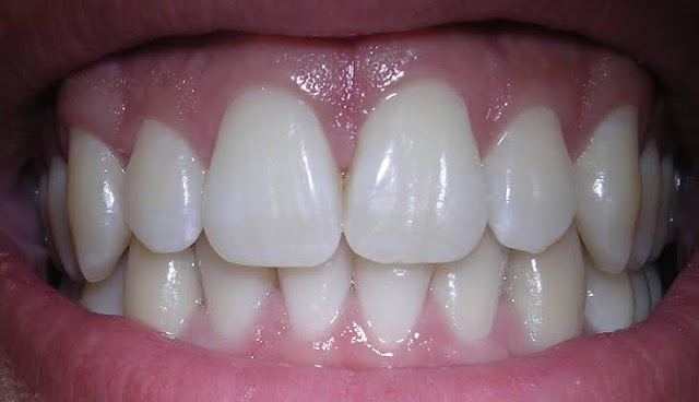 Six Reasons to Get Your Teeth Straightened
