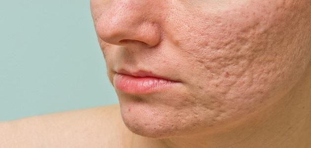Easy ways to clear up acne scars