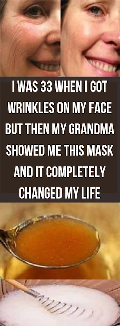 I Was 33 When I Got Wrinkles On My Face But Then My Grandma Showed Me This Mask And It Completely Changed My Life