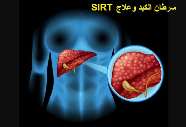 سرطان الكبد وعلاج SIRT
