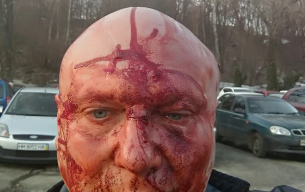 У Києві проломили голову догхантеру. 18+