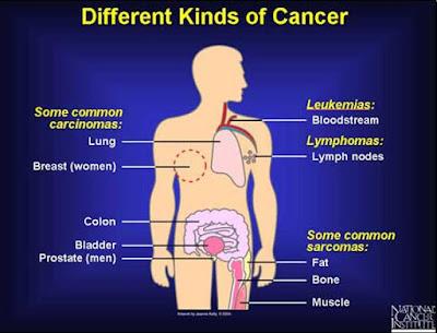 कैंसर के प्रकार