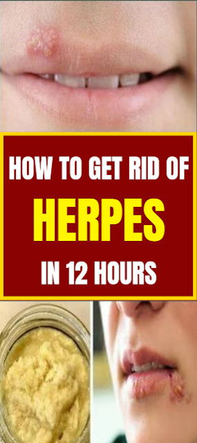 How To Get Rid Of Herpes In 12 Hours