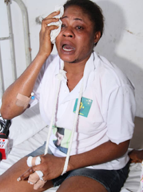Lady Whose Fingers Were Chopped Off By Fulani Herdsmen Offers Employment, Cash