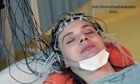 EEG Scan electroencephalographic