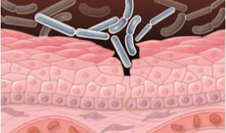 Mikroba dapat menembus kulit dan berkembang didalamnya memicu abnormalitas sel
