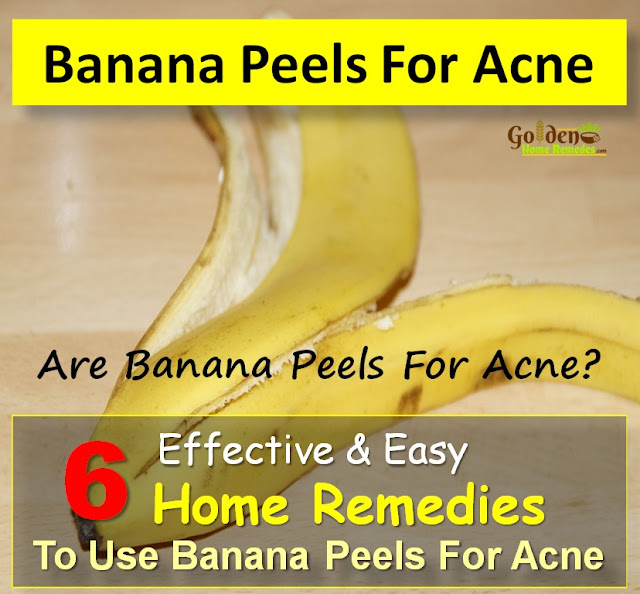 Banana Peel For Acne, Banana Peel Acne, Banana Peel And Acne, Is Banana Peel Good For Acne, How To Get Rid Of Acne, How To Get Rid Of Acne Fast, Home Remedies For Acne, Acne Treatment,