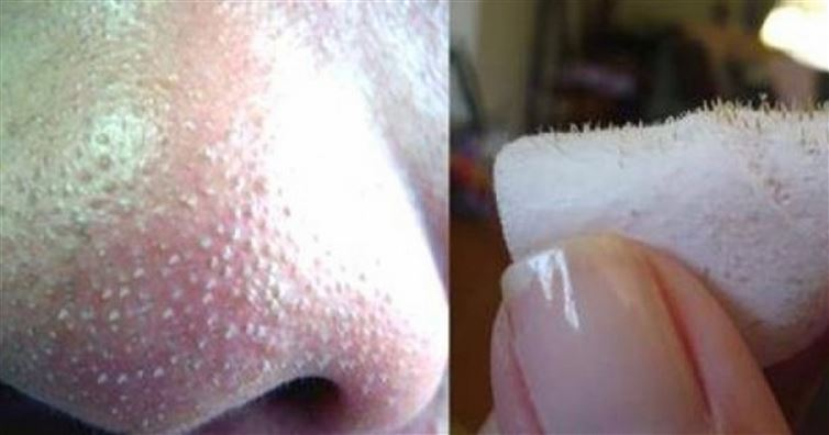One Simple Trick to Easily Remove Blackheads