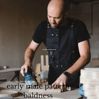 what causes of male pattern baldness
