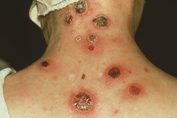 Top 3 traitements maison pour lutter contre la syphilis naturellement
