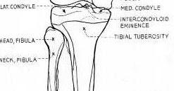Radiographic positioning: Tibia Fibula