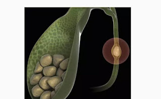what is gall bladder stones