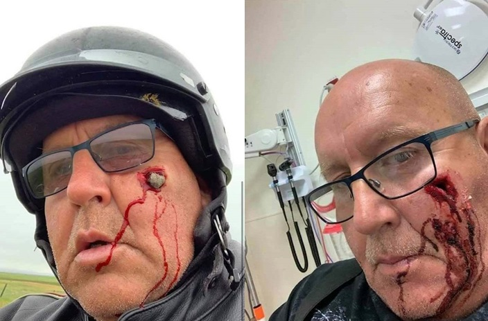 akibat tidak pakai kaca helm, wajah berlubang dihantam batu kerikil