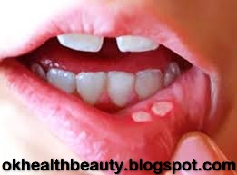 Mouth Blisters Cure Mun K Chalay Ka Ilaj In Urdu Mun Kay