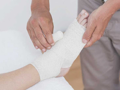 Plaster or Fiberglass? A Guide to Casts