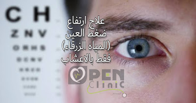 علاج ارتفاع ضغط العين بالاعشاب