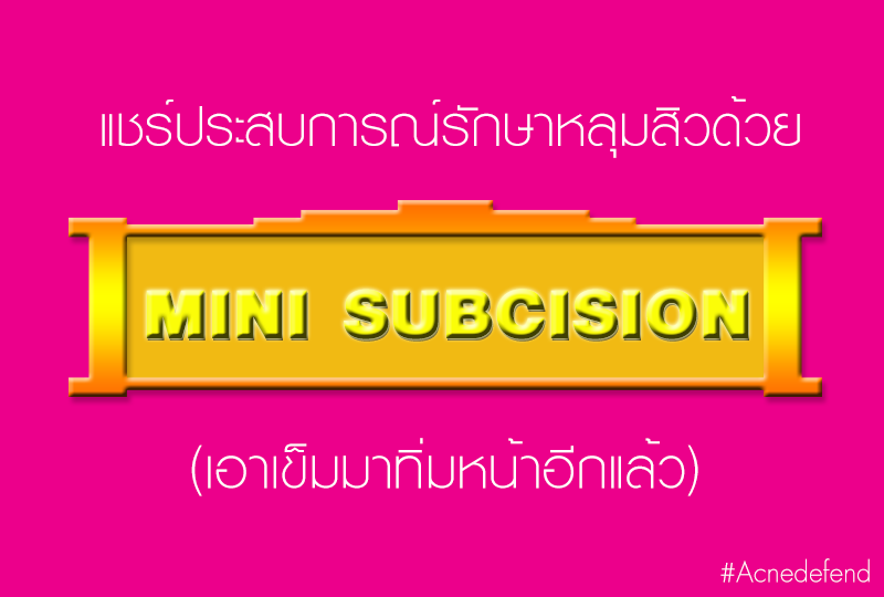 Mini subcision นิติพลคลินิก