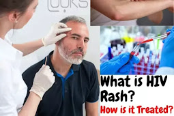 What is HIV Rash? Characteristics of HIV rash. How is it Treated?
