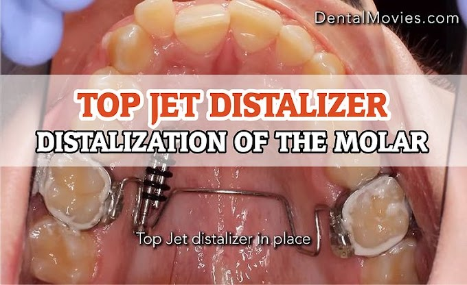 TOP JET DISTALIZER: Distalization of the molar