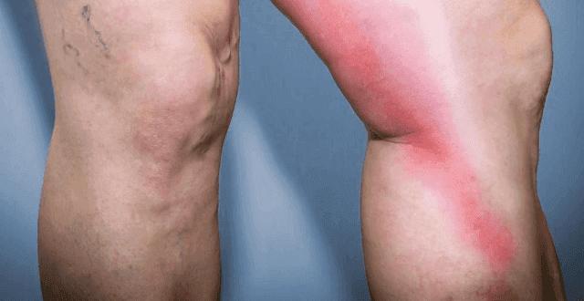 كيف يتم علاج التهاب الوريد الخثاري
