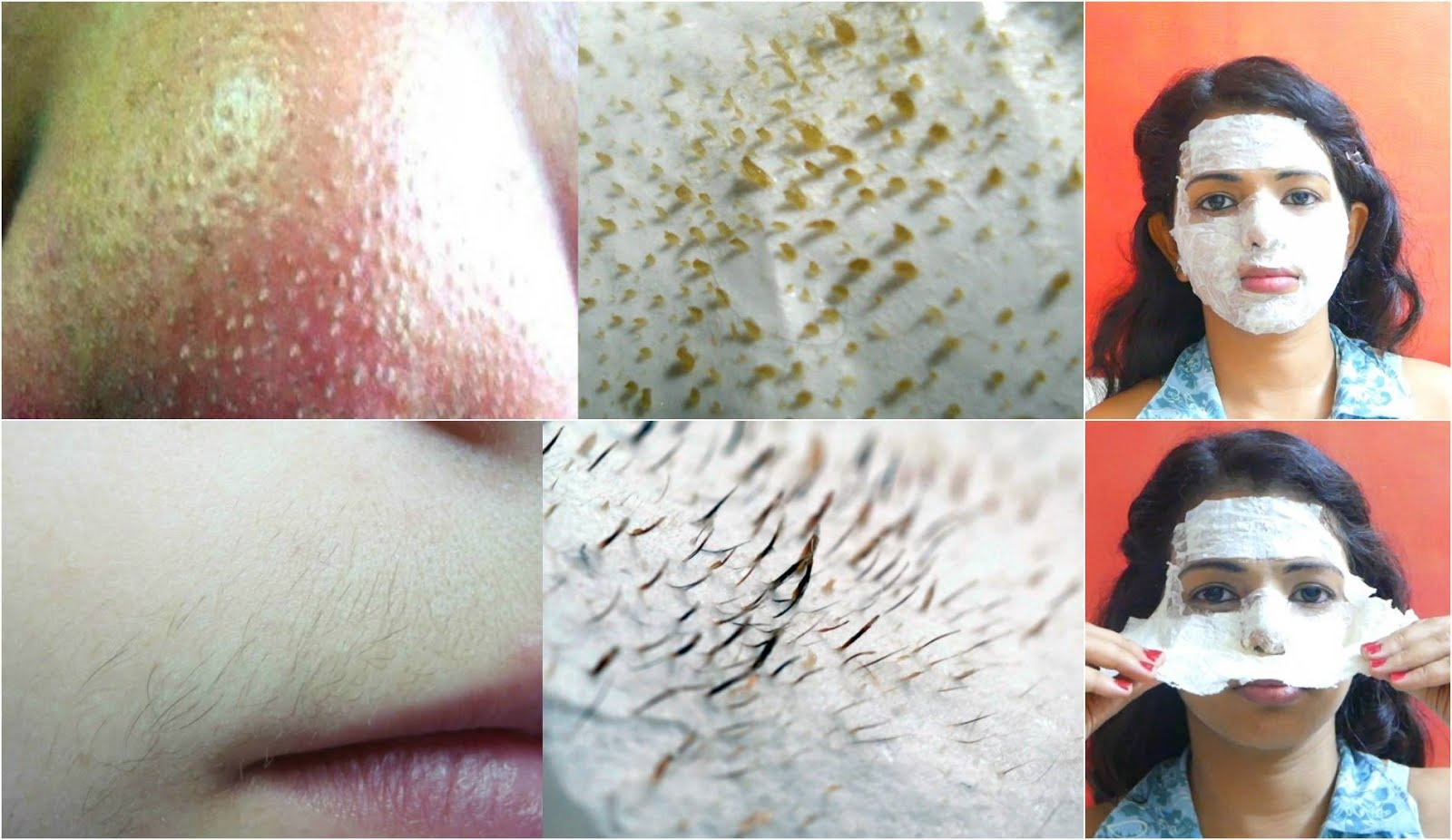 How To Remove Blackheads From Nose Naturally At Home