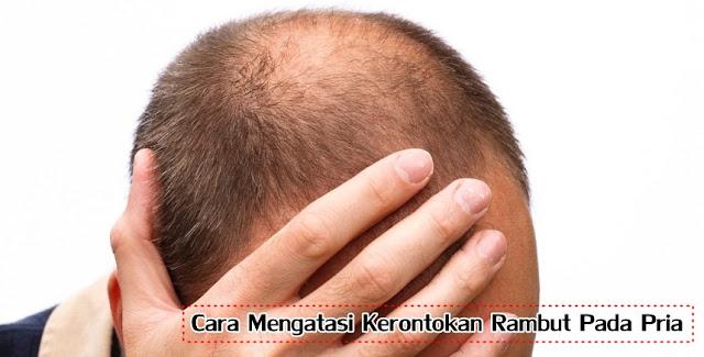 Cara Mengatasi Kerontokan Rambut Pada Pria