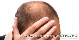 Tips Mengatasi Kerontokan Rambut Pada Pria