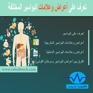 تعرف على أعراض وعلامات البواسير المختلفة