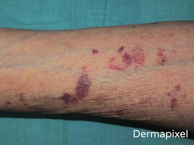 Senile Purpura On Skin Causes - Year of Clean Water