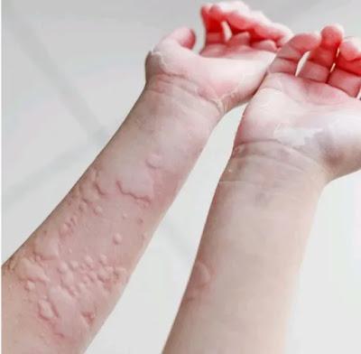 gatal-gatal alergi dingin