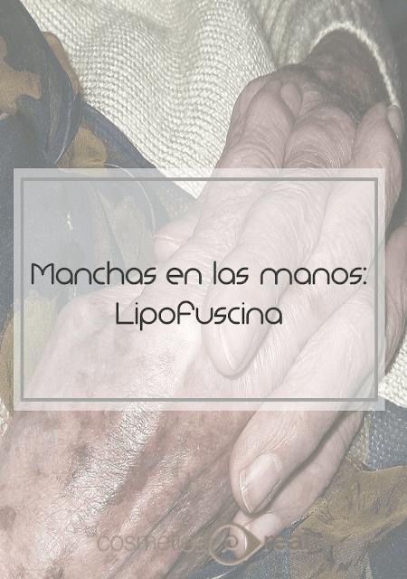 Cómo eliminar las manchas en las manos: Lipofuscina